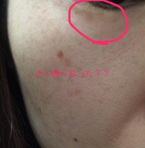 5日目シミ画像
