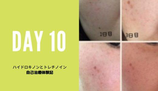 ハイドロキノン、トレチノイン治療10日目写真と10日間まとめ