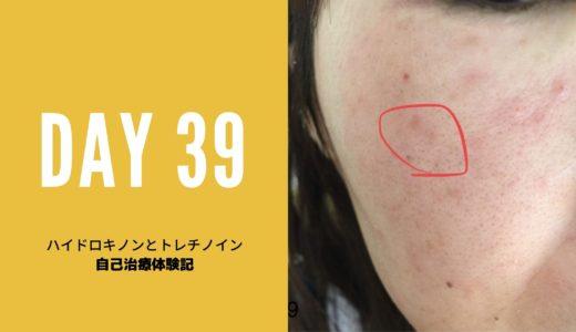 ハイドロキノン、トレチノイン治療経過39日目写真付き 1か月と8日