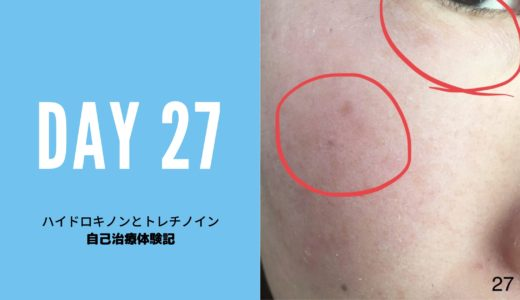 ハイドロキノン、トレチノイン治療経過27日目写真付き