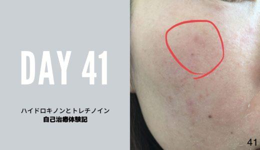 ハイドロキノンとトレチノイン治療経過41日目写真付き 1か月と10日